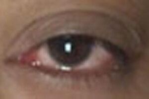eye-allergy